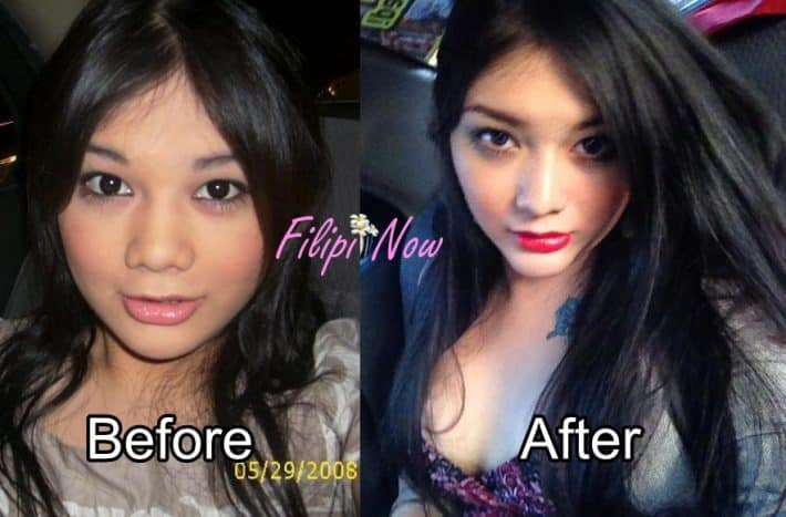 Surgery ladyboy after Transsexual Sex